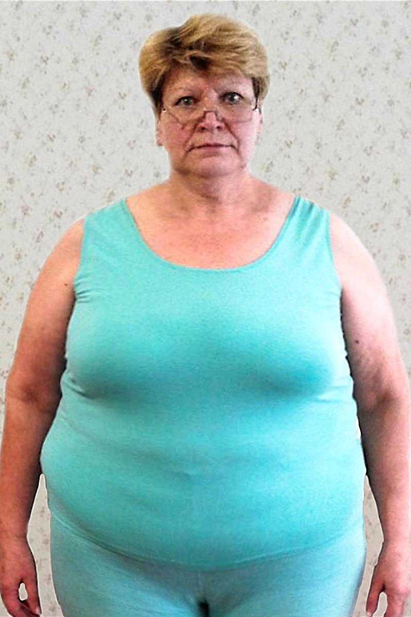 Азюкова Вера до диеты